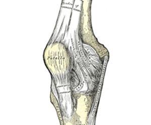 Articulação  do joelho. Como tratar artrose.