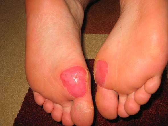 Bolhas nos pés. (Jason Cartwright/flickr)