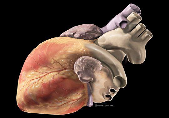 Doenças do coração e vasos sanguíneos. (Patrick J. Lynch/wikimedia)