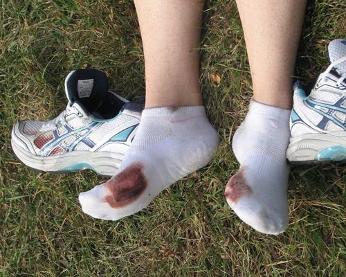 Estado dos pés ao final de uma maratona. (soundfromwayout/flickr)