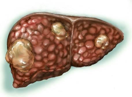 Fígado e Hepatite B