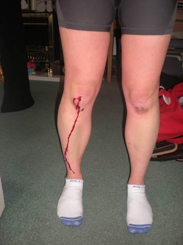 Machucado no joelho durante corrida. (lisibo/flickr)